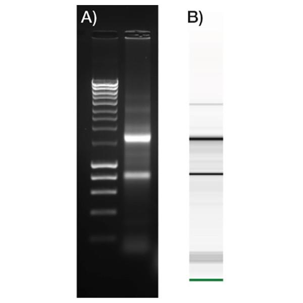 Isolate Ii Rna Micro Kit Bioline Meridian Bioscience